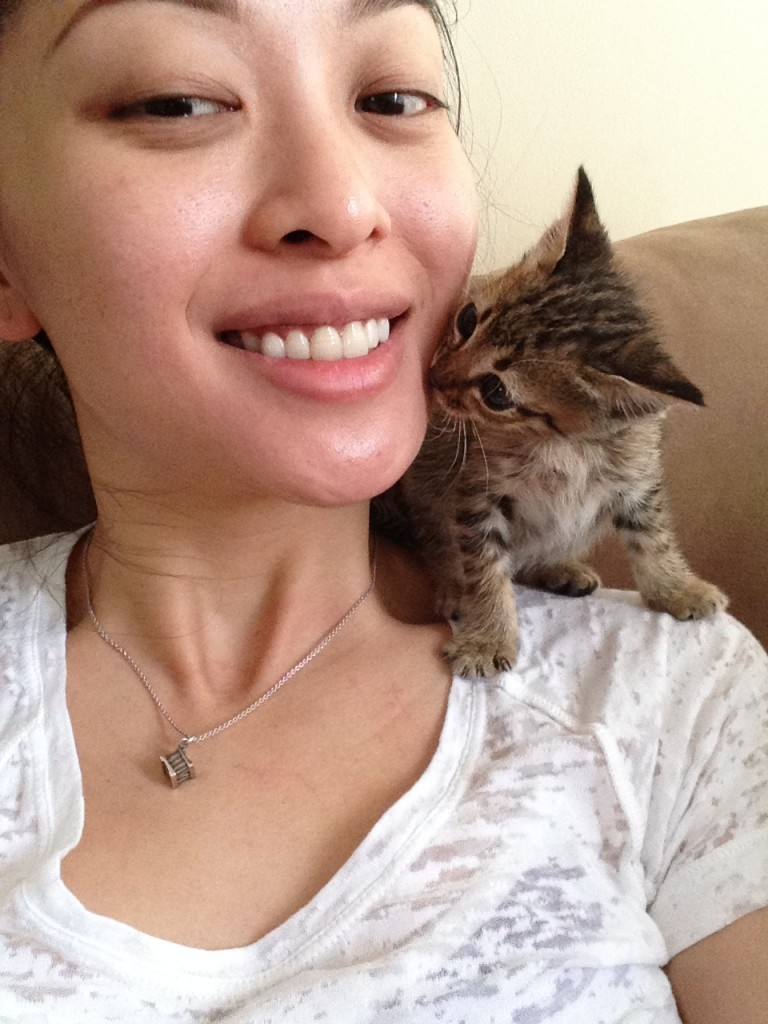 This was taken after my 2nd Fraxel treatment. Plus you get to see Lil'Diva giving me a kiss too!