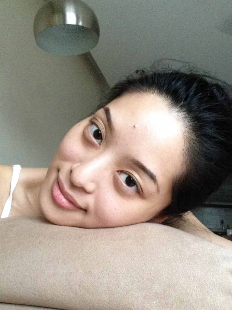My skin is much smoother and brighter after the 3rd treatment. I rarely wear makeup nowadays!
